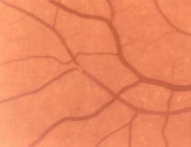 Cholesterol embolus. Note that the embolus is loca