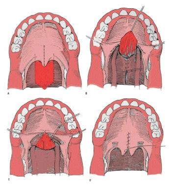 Pharyngeal flap. A mucosal flap from the posterior