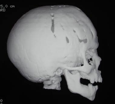Craniosynostosis management. A 1-year postoperativ