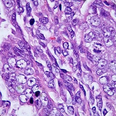 A higher power view of carcinosarcoma. Note the nu