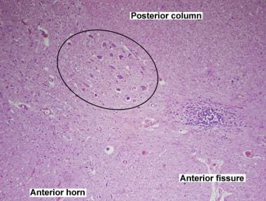 Amyotrophic lateral sclerosis. Histologic features