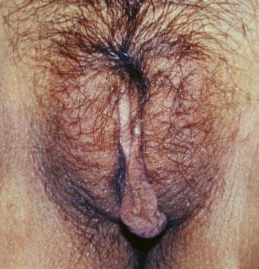 Benign vulvar lesions. Labial hypertrophy.