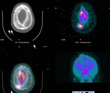 Positron emission tomography: PET images demonstra