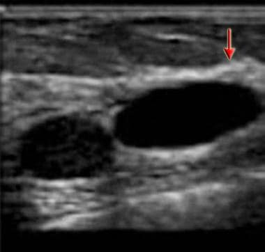 Ultrasonogram demonstrates 2 ovoid, smooth, thin-w