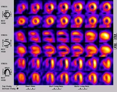 A SPECT perfusion study in a patient with a large