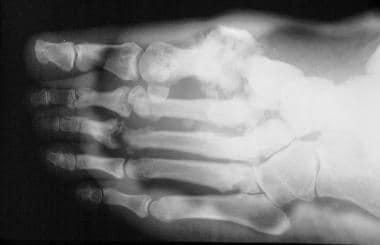 Neuropathic arthropathy (Charcot joint). Lisfranc