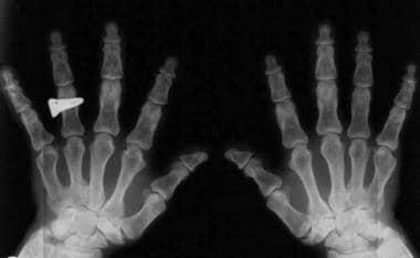 Trident hands.