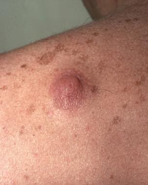 Ectopic supernumerary nipple on the shoulder. Cour