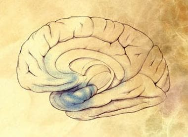 Preclinical Alzheimer disease. Image courtesy of N