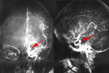 Oculomotor Nerve Palsy: Background, Pathophysiology ...  Oculomotor Nerv...