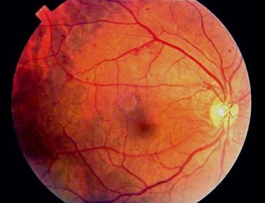 Fundus photograph of early background diabetic ret