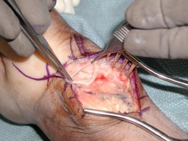 ganglion cyst treatment & management: approach considerations, Skeleton