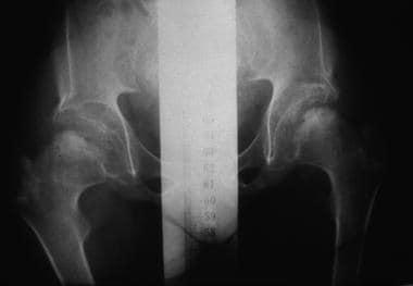 Morquio syndrome; anteroposterior radiograph of pe