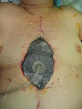 Sternal wound debridement with vacuum-assisted clo