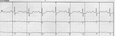 First-degree atrioventricular block. PR interval i