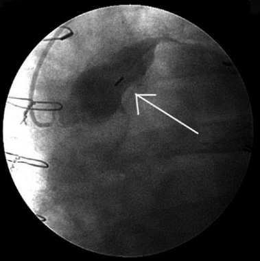 Cardiac catheterization demonstrating a saphenous