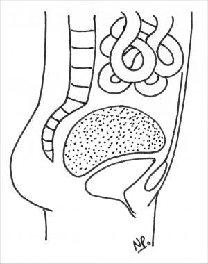 Pelvic-space–occupying device.