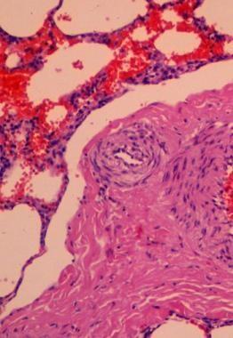 Lung biopsy demonstrating severe interstitial fibr