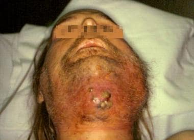 Cutaneous fistula due to a dental infection that c