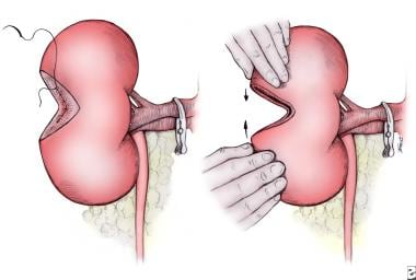 The renal collecting system, if entered, is closed