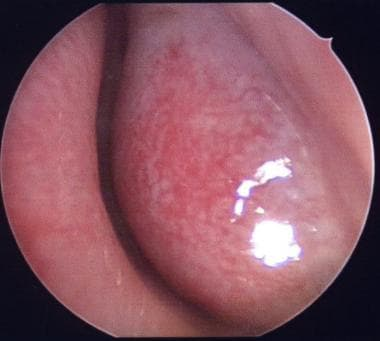 Boggy inferior turbinate in an allergic patient.