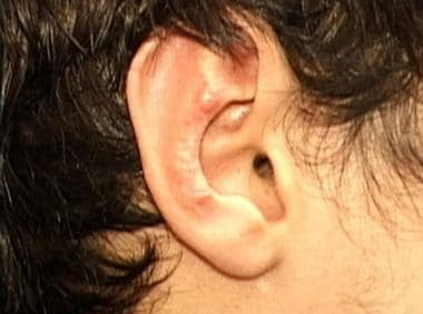 Irregularity and sharp angles after cartilage-inci