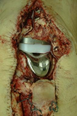 A knee replacement prosthesis in situ at autopsy,