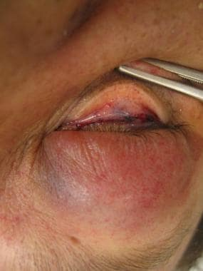 Petechiae in a restrained driver involved in a rol