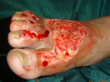 Debridement of venous ulcer on foot.