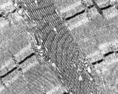 Tubular aggregate myopathy, electron micrograph. A