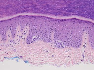 Acral junctional melanocytic nevus with nests of b