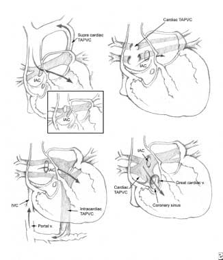 Anomalous pulmonary venous return (APVR). Types of