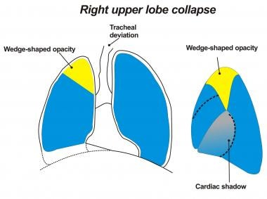 Image depicting a right upper lobe collapsing post