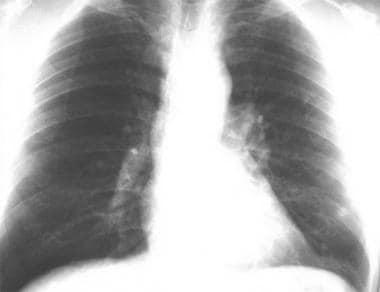 Thoracic histoplasmosis. A chest radiograph in a 4