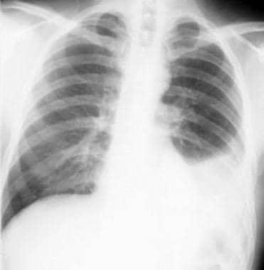 Non–small cell lung cancer. Left pleural effusion