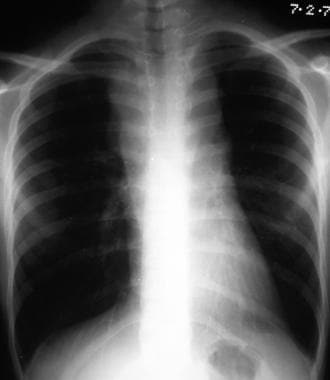 Posteroanterior (PA) chest radiograph in a man wit