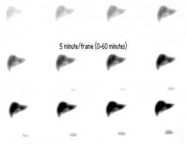 Cholescintigraphy (1-h initial images) in 61-year-