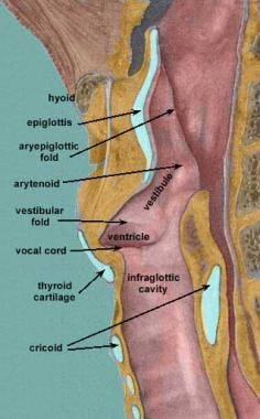 Sagittal view of the larynx. Courtesy of Wesley No