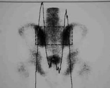 Quantitative scintigraphy. Increased sacroiliac jo
