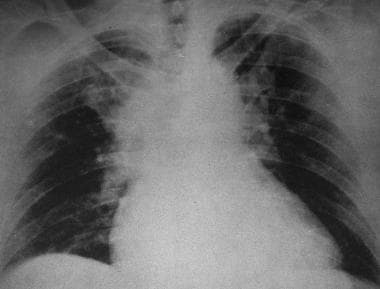 Supine frontal radiograph after significant blunt