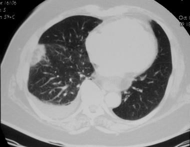 Pulmonary angiography. CT image obtained by using