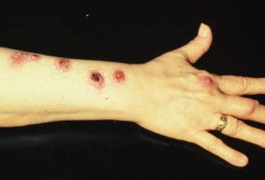 Mycobacterium marinum is an atypical mycobacteria