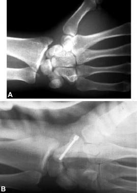 A is a lateral radiograph typical of transscaphoid