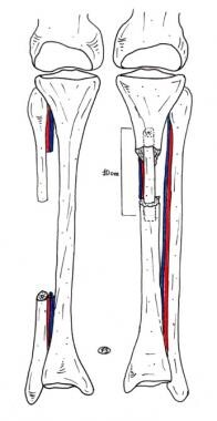Clinical Case 3. Postoperative drawing. Schematic