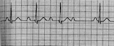 Second-degree atrioventricular block, Mobitz type