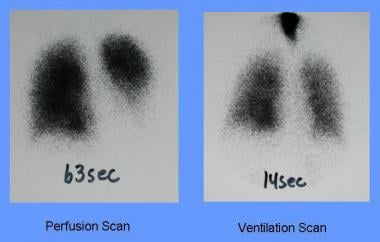Anterior views of perfusion and ventilation scans