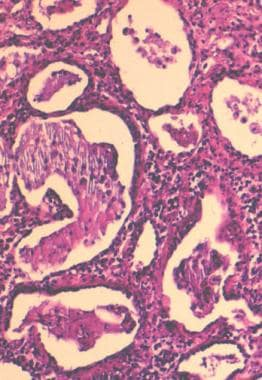Lung biopsy demonstrating expansion of the interst
