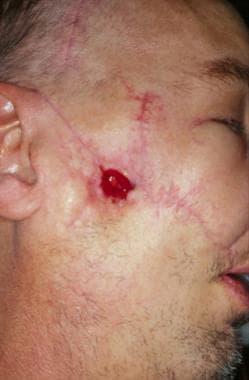 Gunshot wound causing an oral cutaneous fistula. C