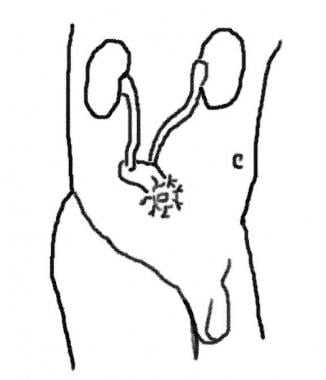 In an ileal conduit, a small segment of ileum is t
