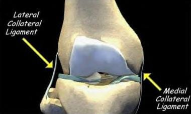 lateral collateral knee ligament injury: background, functional, Human Body